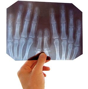 x-ray dallas tx